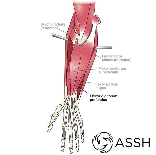 Muscles-Wrist-FlexDigPro2